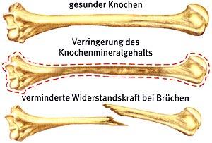 Knochenbruch Ernährung